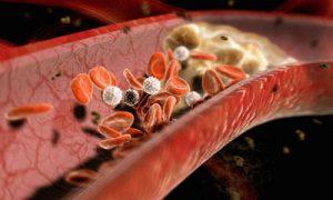 Накопление холестерина может происходить долгое время