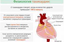 Довольно часто проявление тахикардии может служить симптомом различных заболеваний