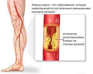 Боль в ногах - самый частый симптом недуга