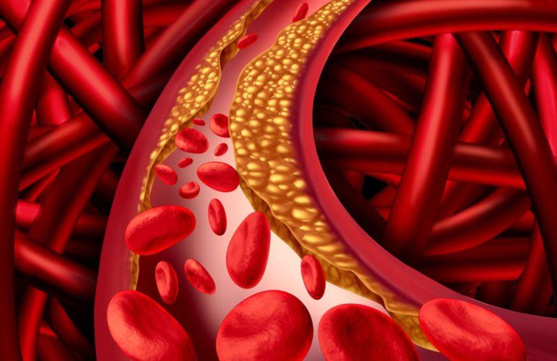 Классификация стенокардии: виды и формы