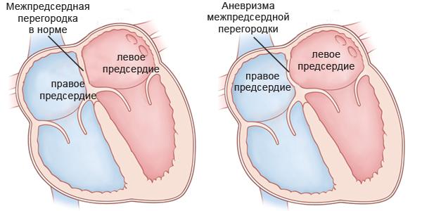 diagnostika-mezhpredserdnoj-peregorodki