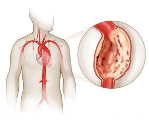 Данный недуг связан с другими болезнями сердечной системы