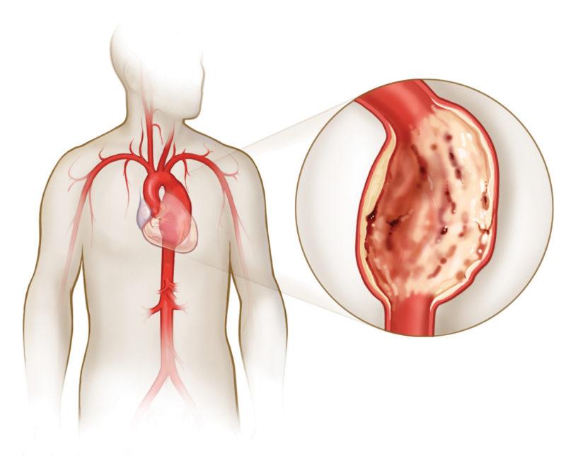 Аневризма сердца после инфаркта прогноз — Сердце