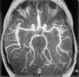 Ангиография сосудов головного мозга как метод диагностики