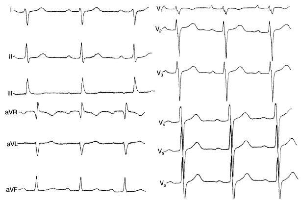 Аномалия в развитии сердца видна на ЭКГ