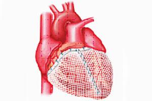 Увеличение желудочка сердца - один из признаков появления недуга