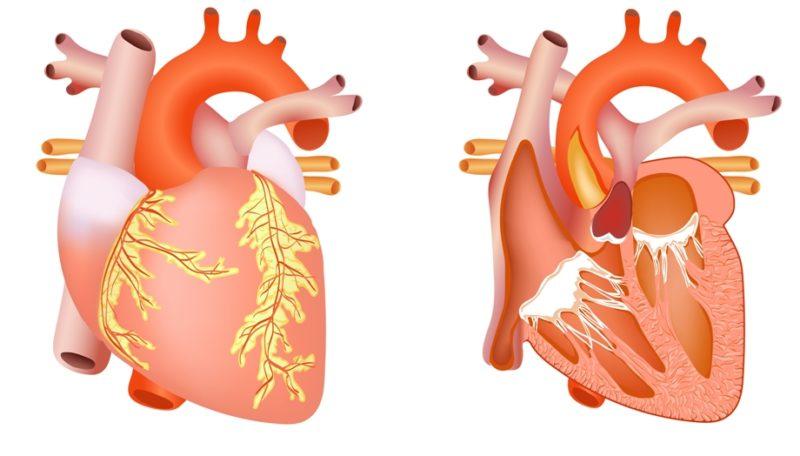 Уменьшение способности мышц сердца к растяжению приводит к патологии