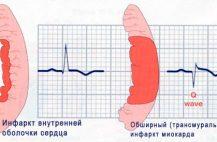 Если кровоснабжение сердечной мышцы нарушается более чем на 20 минут то наступают необратимые изменения в миокарде