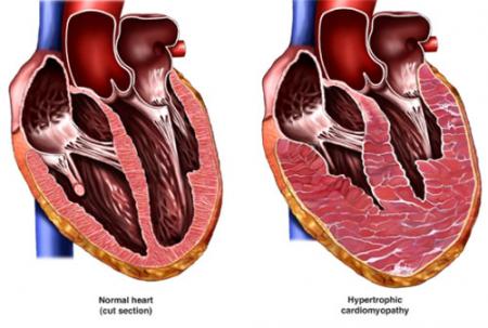 Признаки нарушения диастолической функции левого желудочка