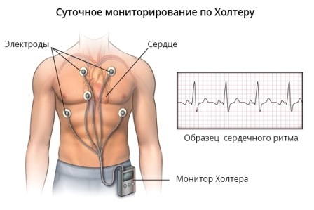 Метод с помощью которого осуществляется суточное наблюдение за работой сердца