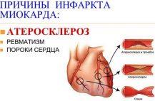 prichiny-vozniknoveniya-infarkta