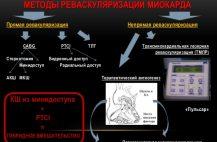 revaskulyarizaciya-miokarda-chto-ehto-takoe
