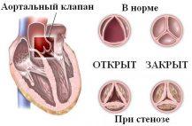Характеризуется сужением клапана в промежутке между кровеносным сосудом и левым желудочком