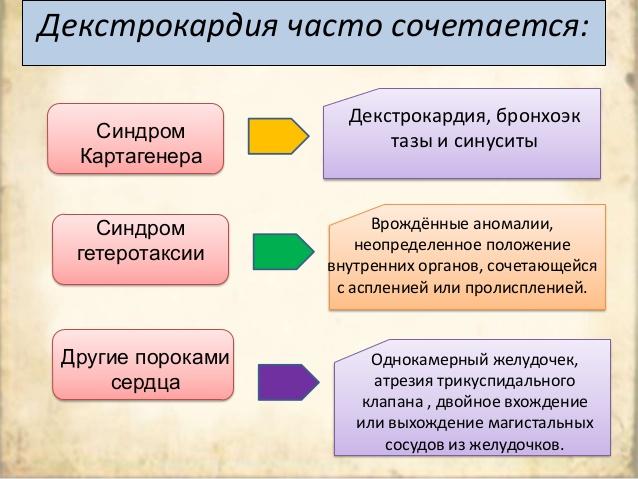 kak-proyavlyaetsya-dekstrokardiya-serdca