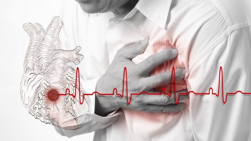 Инфаркт миокарда стадии развития ⋆ Лечение Сердца