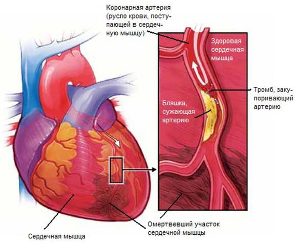 chto-takoe-mikroinfarkt