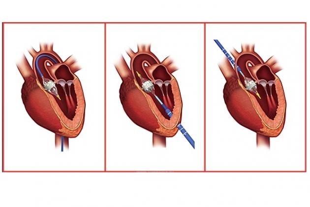 stenoz-legochnoj-arterii