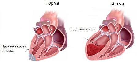 Острая сердечная недостаточность сердечная астма отек легких