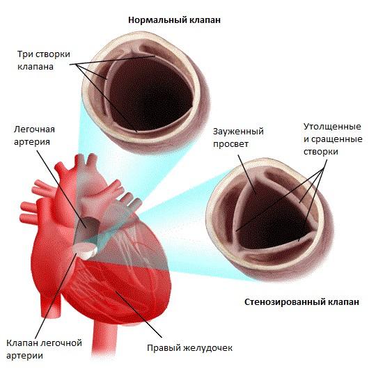Stenoz javljaetsja prichinoj pereboev v transportirovke krovi v legkie - Estenose pulmonar isolada em crianças