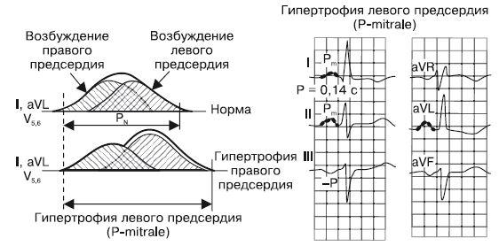 pokazateli-kardiogrammy-pri-gipertrofii-levogo-predserdiya