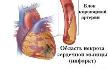 infarkt-simptomy-pervye-priznaki