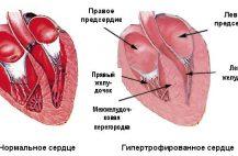 gipertrofiya-levogo-zheludochka-serdca-na-ehkg-chto-ehto-znachit