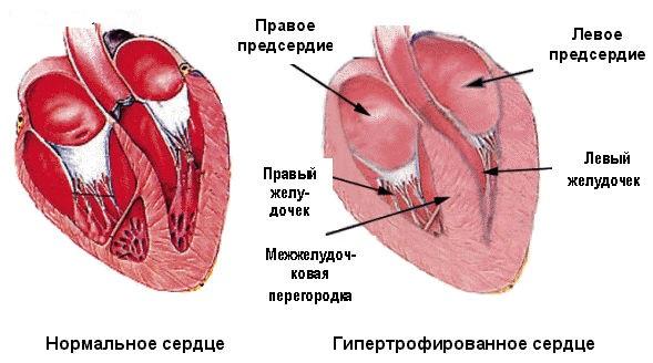 hipertrophia se - Časté příznaky komorové hypertrofie srdce na EKG