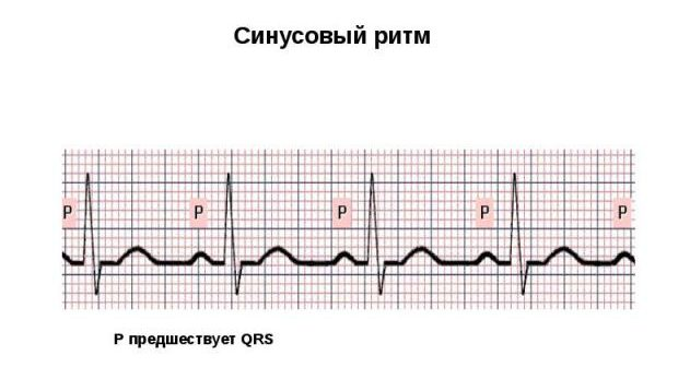pokazateli-sinusovogo-ritma-ehkg