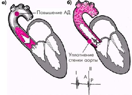 Уплотнение стенок аорты и стенок аортального клапана