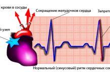 sinusovyj-ritm-serdca-chto-ehto-znachit-u-vzroslogo