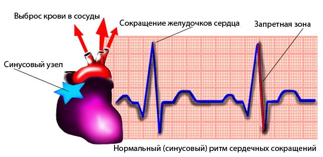 primer-kardiogrammy-zdorovogo-serdca