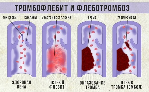 На рисунке видно, как происходит образование тромба в сосудах