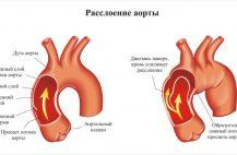 rassloenie-aorty-simptomy
