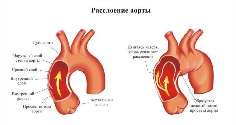 chto-takoe-rassloenie-aorty-simptomy