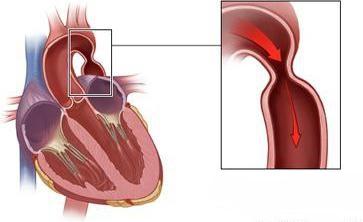 Патология может привести к более серьезным заболеваниям сердца