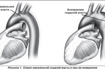 razryv-aorty-chto-ehto-takoe