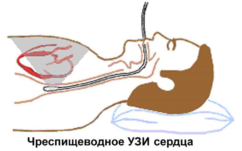metody-processa-ehkhokardiografii