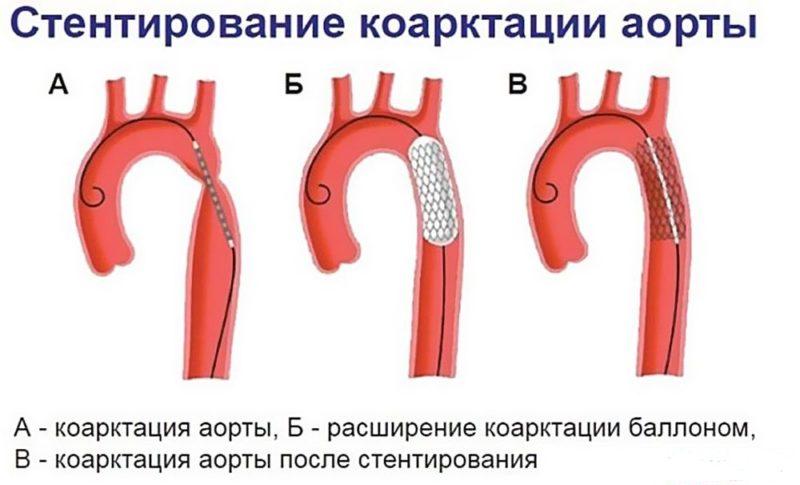 Наглядный пример как лечат недуг